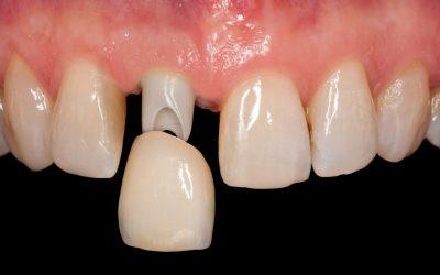 Capsule dentarie