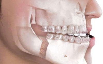 Ortodonzia chirurgica